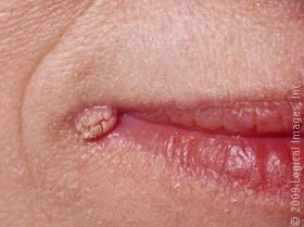 common_gental_warts_mouth