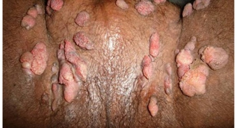 Pictures of genital warts on anus