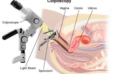 Colposcopy_procedure