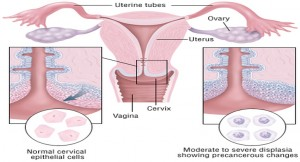 Pap test hpv